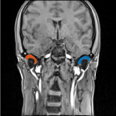 Temporomandibular Joint Imaging Edwin L. Christiansengolkes