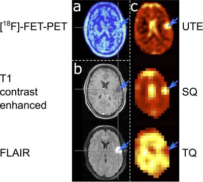 ISMRM19 Posters - Molecular Imaging