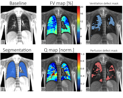 ISMRM19 - Artificial Intelligence in Body MRI