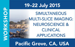 ISMRM Workshop on Simultaneous Multi-Slice Imaging: Neuroscience & Clinical Applications