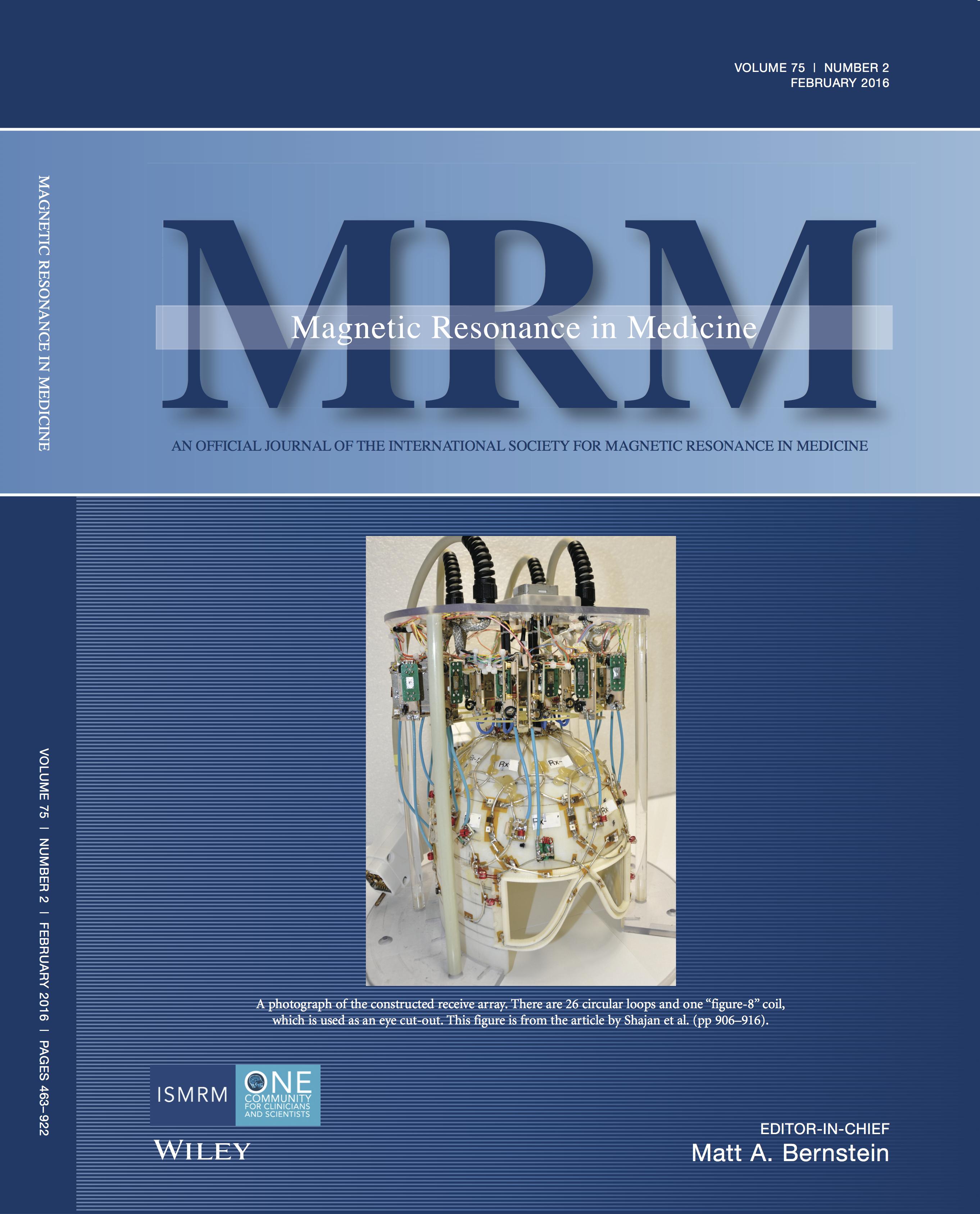 MRM_SPC1